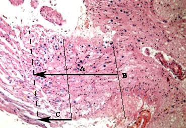 hemifacial spasm 1